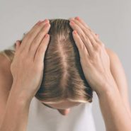 Top Reasons That Cause Baldness In Women?