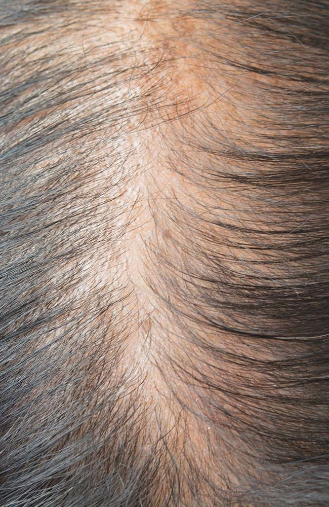 How Can You Control Women's Hair Loss Problem?